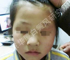 9岁女孩的抗白经历2.jpg